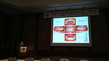 下顎前歯に咬合性外傷の見られた重篤な過蓋咬合のtwo incisors症例